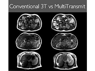 MultiTransmit-Upgrade MR-Systemupgrade