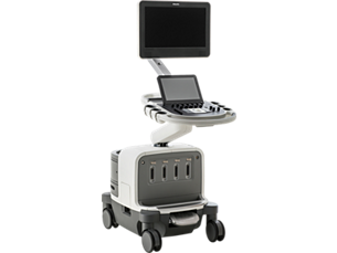 EPIQ Ultrasound system for radiology