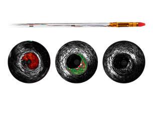 Eagle Eye Platinum ST Digital IVUS short tip catheter