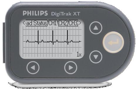 DigiTrak XT Holter monitoring