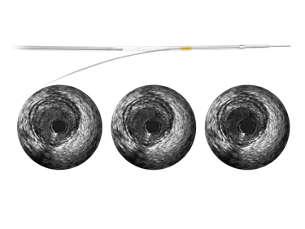 Revolution Cathéter d'imagerie échographique intravasculaire rotationnelle de 45MHz
