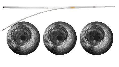 Revolution 45 MHz rotational IVUS imaging catheter