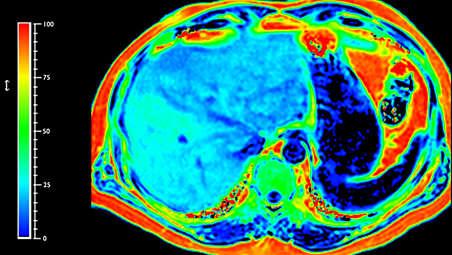 Передовые средства МРТ