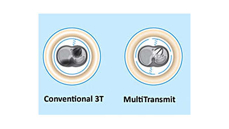 MultiTransmit for contrast uniformity, speed, consistency