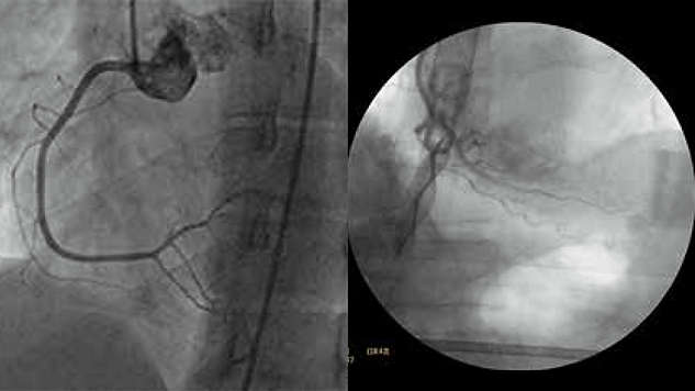Exceptional contrast and clarity  for cardiac exams
