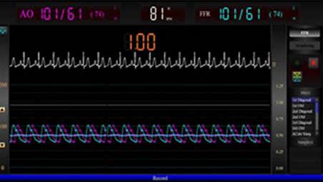 Integrated FFR capabilities - Actionable ischemic measurements