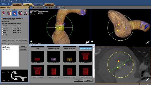 Unterstützung bei der Implantatauswahl zur Fehlervermeidung