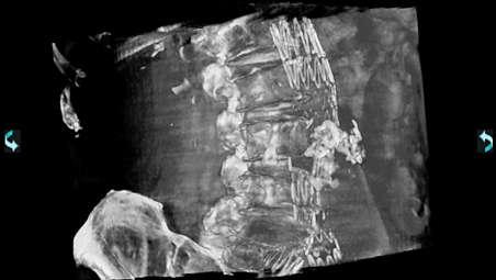 CT-artige Bildgebung mit XperCT Dual