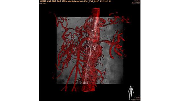 3D-Modellüberlagerung in der Live-Durchleuchtung