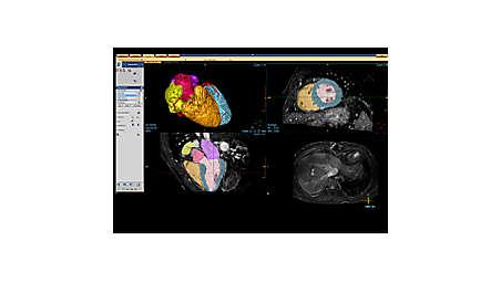 Système d'imagerie personnalisé, axé sur le patient