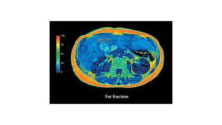 Non-invasive fatty liver assessment