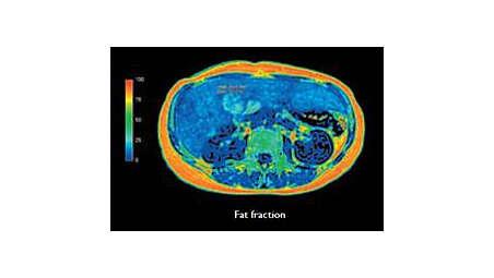 Non-invasive fatty liver assessment