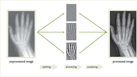 Consistent diagnostic image quality