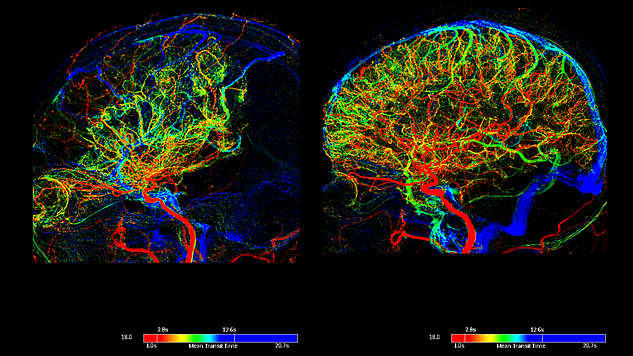 Perfusion imaging in angiographic interventions