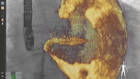 Совмещение изображений УЗ и рентгеноскопии