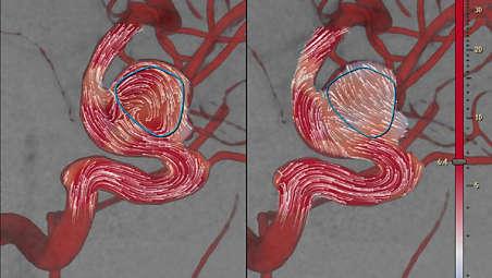 Información relevante sobre el flujo en los vasos sanguíneos