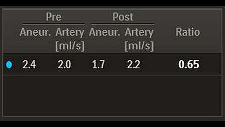 平均动脉瘤血流幅度比值 (MAFA比率)