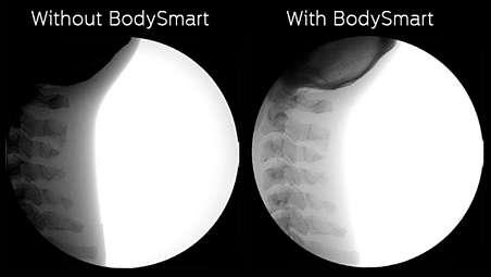 BodySmart: imágenes rápidas y uniformes