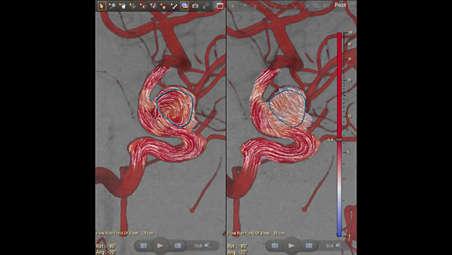 Технология AneurysmFlow: цветовая динамическая кодировка кровотока в церебральной аневризме