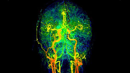New imaging capabilities for stroke workflow: Supports all aspects of stroke treatment