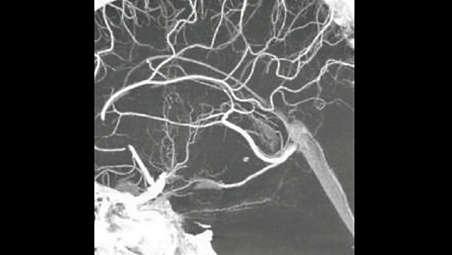 Технология VasoCT: визуализация сосудистого русла за окклюзией