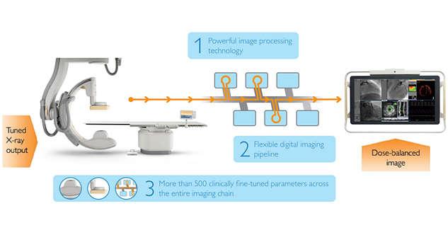 Система AlluraClarity с технологией ClarityIQ:  улучшенная визуализация сосудистой структуры