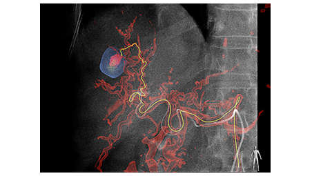 МРТ-подобные изображения для выявления опухолей в вашей лаборатории катетеризации