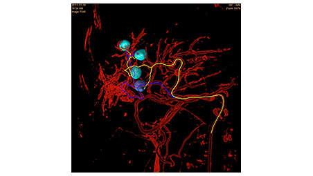 Быстрое выявление опухоли и измерение объемов