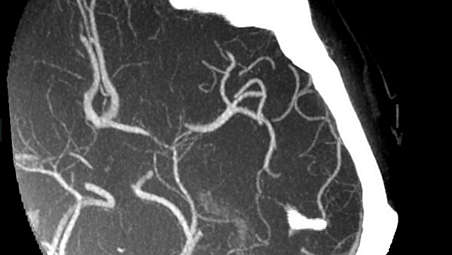 Помощь большему количеству пациентов с ишемическим инсультом с использованием рентгенохирургии
