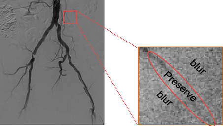Enhancing clinically relevant structures for vascular procedures
