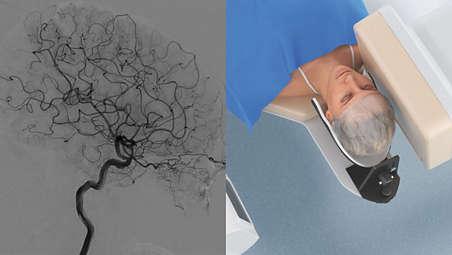 Acceso y cobertura completa en procedimientos neurológicos