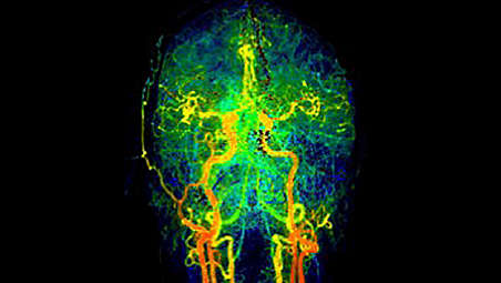 Access new imaging capabilities  for stroke workflow