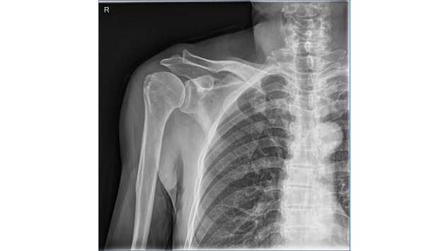 Images de radiologie numérique de qualité
