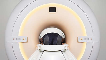 Add 10 years to your MRI lifetime