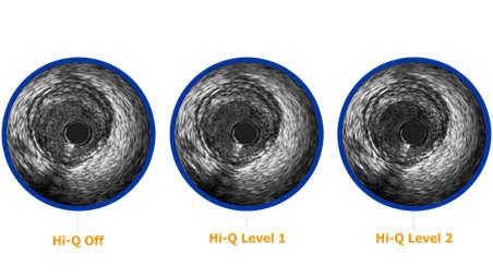 3 Hi-Q imaging options