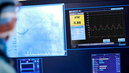 iFR modality simplifies workflow
