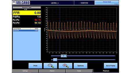 Fractional Flow Reserve measurement