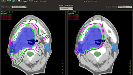Intensity Modulated Proton Therapy (IMPT)