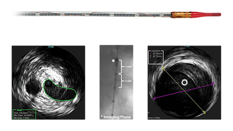 Visions PV .035 Digital IVUS catheter