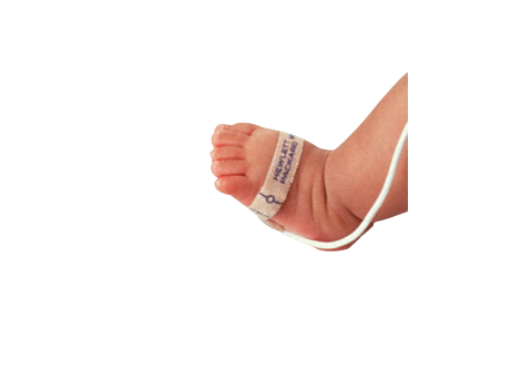 Neonatal Disposable SpO2 Sensor - 24/case Sensor