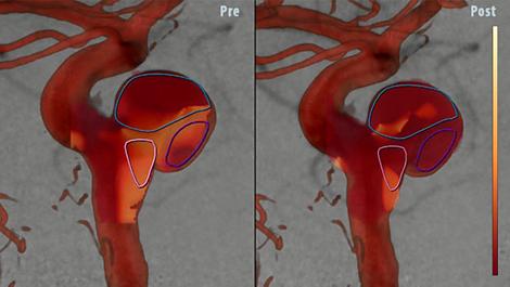 AneurysmFlow Цветовая динамическая кодировка кровотока в церебральной аневризме