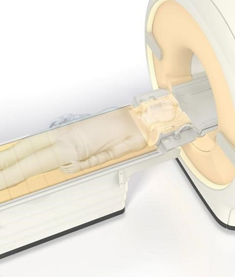 Ingenia 3.0T dStream HeadSpine coil solution -