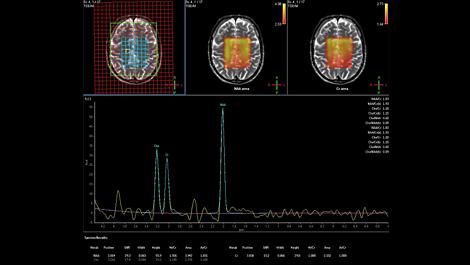 Spektroskopie Klinische MR-Anwendung