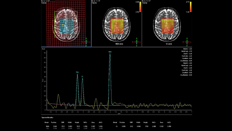 Spectroscopy - Brain MR Clinical application