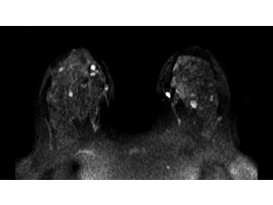 Diffusion - Breast MR clinical application