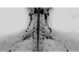 DWIBS - HeadNeck MR clinical application