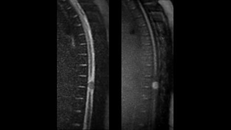DWI-TSE Klinische MR-Anwendung