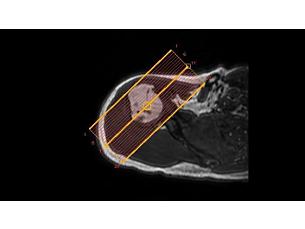 SmartExam Schulter Klinische MR-Anwendung