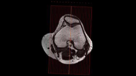 SmartExam Knie Klinische MR-Anwendung