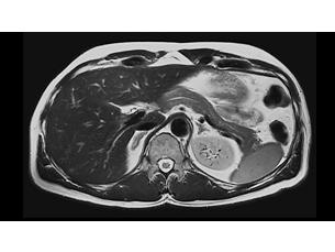 MultiVaneXD Klinische MR-Anwendung